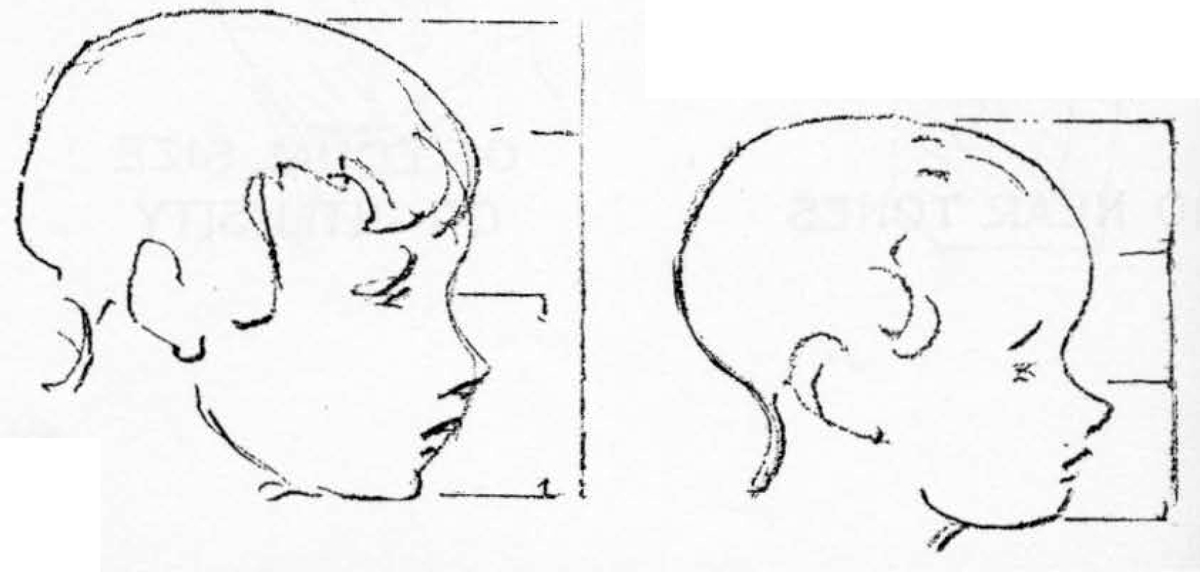 03-drawing-childs-head-proportions-In infancy the head is more elongated and somewhat oval in form.