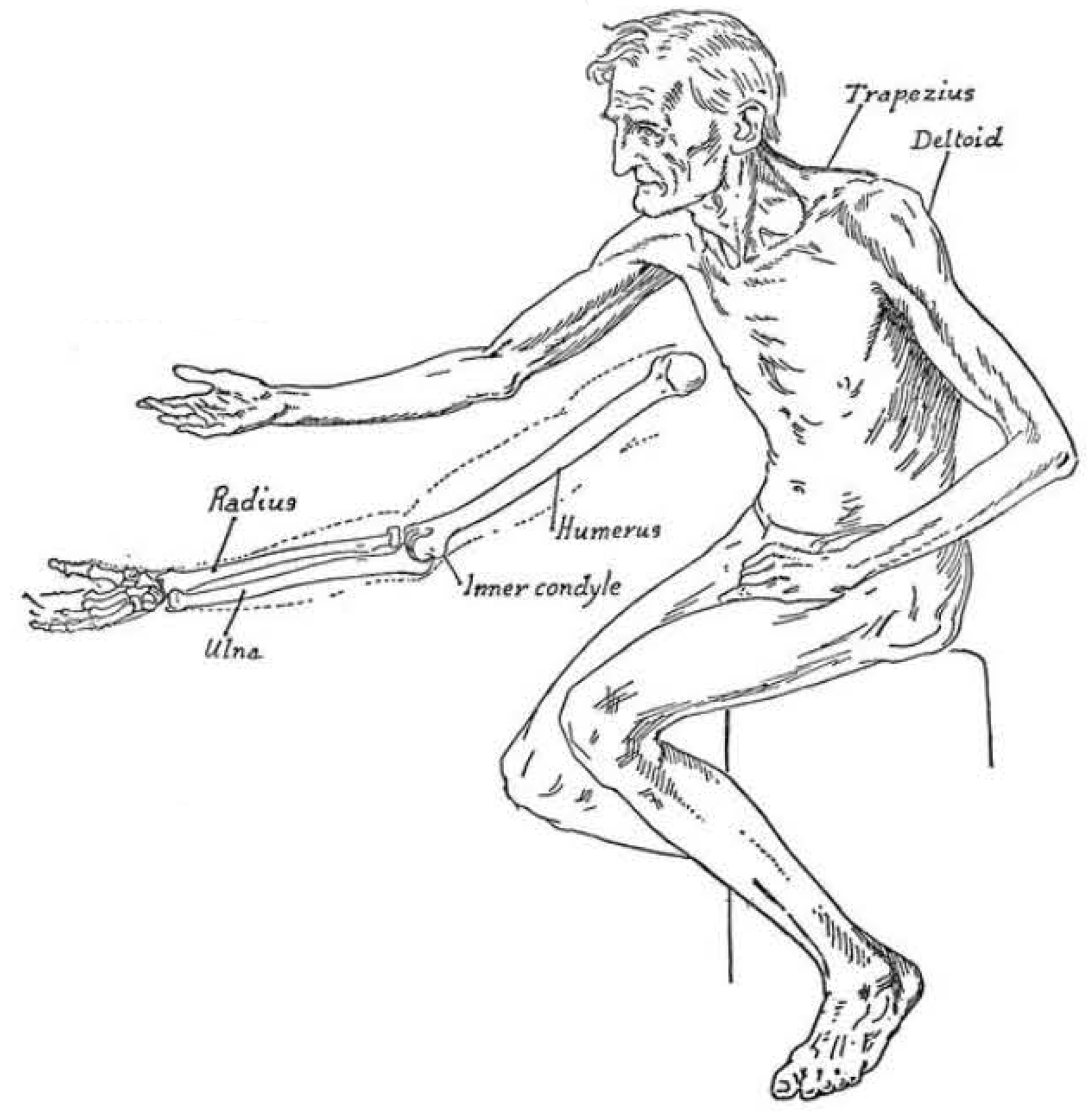 drawing of an old man's body